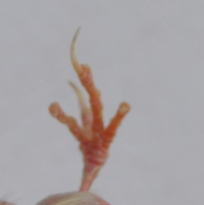 Fig.15: Dedos con falta de uñas.
